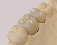 Zirconium Dental Crones